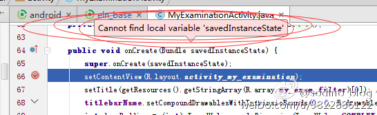 cannot.find.local.variable